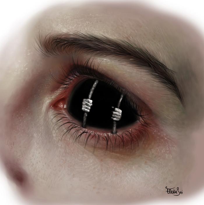Eye prison